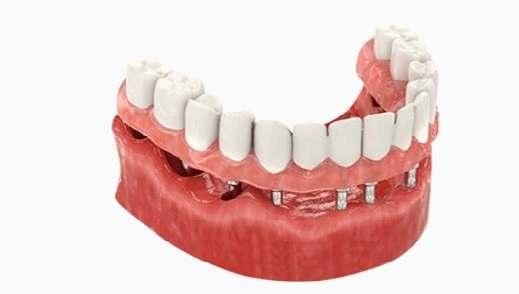 "Имплантация зубов метод ""Все на 6"""